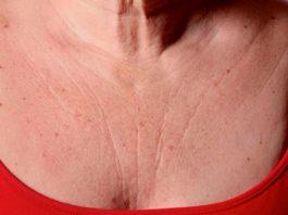 Эти 3 супер средства быстро устранят морщины на груди и шее — вы будете чувствовать себя намного моложе!
