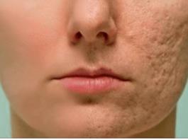 Протрите этим любой шрам, морщину или пятно на коже и посмотрите, как они исчезнут через несколько минут!