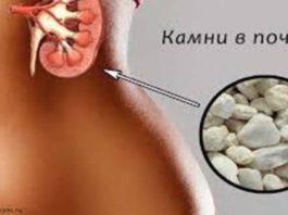 С этим лекарством камни в почках и желчном «растают»! Врачи рекомендуют!