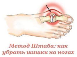 Вот это да! Эффективный метод Н.Н. Штаба избавит от болезненной шишки на ноге!