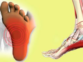 Не стоит терпеть боль! Подошвенный фасциит, боли в пятке и стопе можно устранить всего за 7 минут!