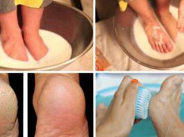 Хватит тратить деньги на педикюр: эти 2 простых продукта сделают твои ножки идеальными!
