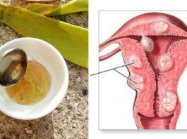 Я ела 3 ст. ложки смеси из 3 ингредиентов и вылечила рак матки! Узнайте рецепт!