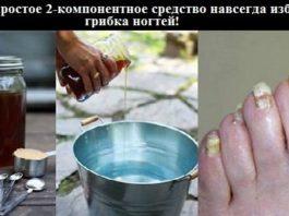 Это простое 2-компонентное средство навсегда избавит от грибка ногтей!