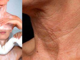 Минус 10-15 лет! Вы быстро избавитесь от морщин на коже декольте и шеи применяя эти мощные средства