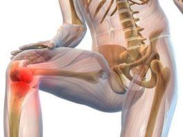 Почему хрустят суставы. Что мы должны об этом знать?