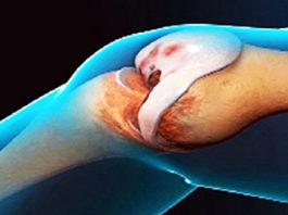 Врачи удивляются! Это средство восстанавливает колени и суставы!