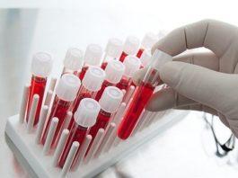 Расшифровка – общий анализ крови