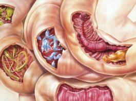 Смесь 2 ингредиентов очистит ваше тело от всех видов паразитов, а также от многих болезней!
