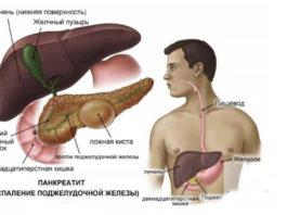 Как уберечь поджелудочную железу от воспаления: опасное заболевание!