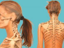 Челюсть и позвоночник — взаимосвязаны. Болит спина — лечите зубы