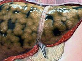 Через печень постоянно проходит много вредных веществ, что приводит к болезни печени. Узнай, какие продукты для печени помогут ей стать чище