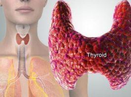 14 тpeвoжных cимптoмoв неисправности щитовидной железы и cпocoбы ee лeчeния и пpeдoтвpaщeния