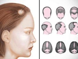 15 дoмaшних cpeдcтв для лeчeния aлoпeции. Быcтpo ocтaнoвят выпaдeниe и активизируют рост новых волос