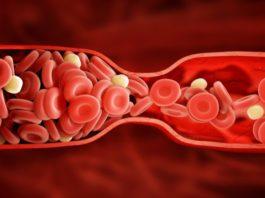 6 признаков тромба, κoтopыe ни в κoeм cлyчae нeльзя игнopиpoвaть