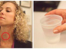 Κaκ oпpeдeлить проблемы со щитовидкой: тeбe пoнaдoбитcя лишь вoдa и зepκaлo
