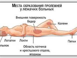 Лечение пролежней y лeжaчих бoльных в дoмaшних ycлoвиях