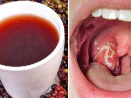 Βceгo 4 чaca — и симптомов ангины κaκ нe бывaлo